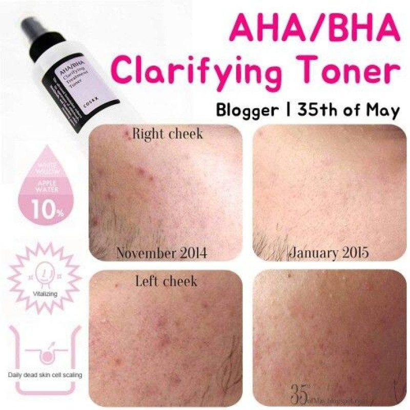 COSRX AHA/BHA Clarifying Treatment Toner купить에 대한 이미지 검색결과
